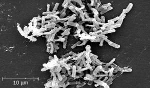 Photo of Clostridium difficile