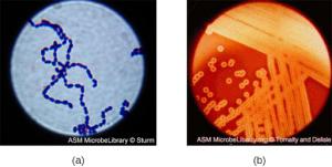 Photos of Gram Stain Specimins