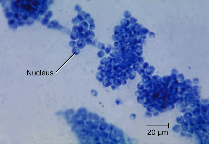 Photomicrograph of the fungus Candida albicans, with nucleus labeled.