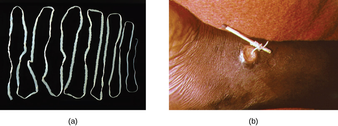 Photo of tapeworm. Second photo shows removal of tapeworm.