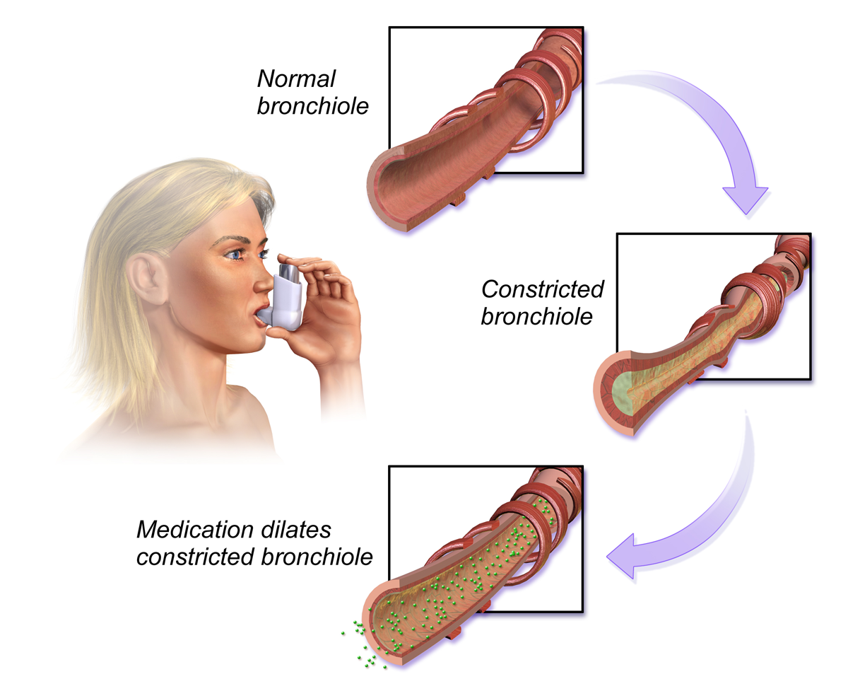 Images showing affect of asthma medication on bronchiole, as a woman inhales the medication.
