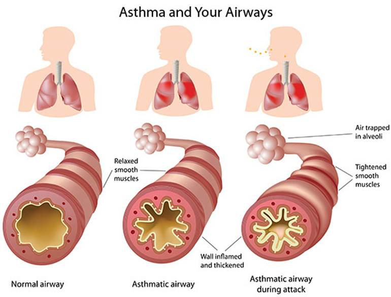 llustration of how asthma affects the airways