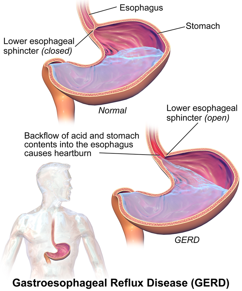 Illustration showing gastroesphageal reflux disease