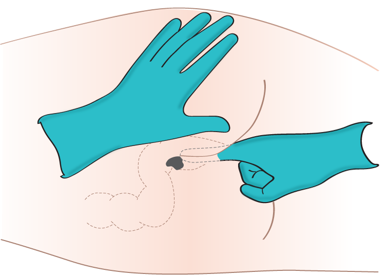 Illustration showing insertion of rectal suppository.
