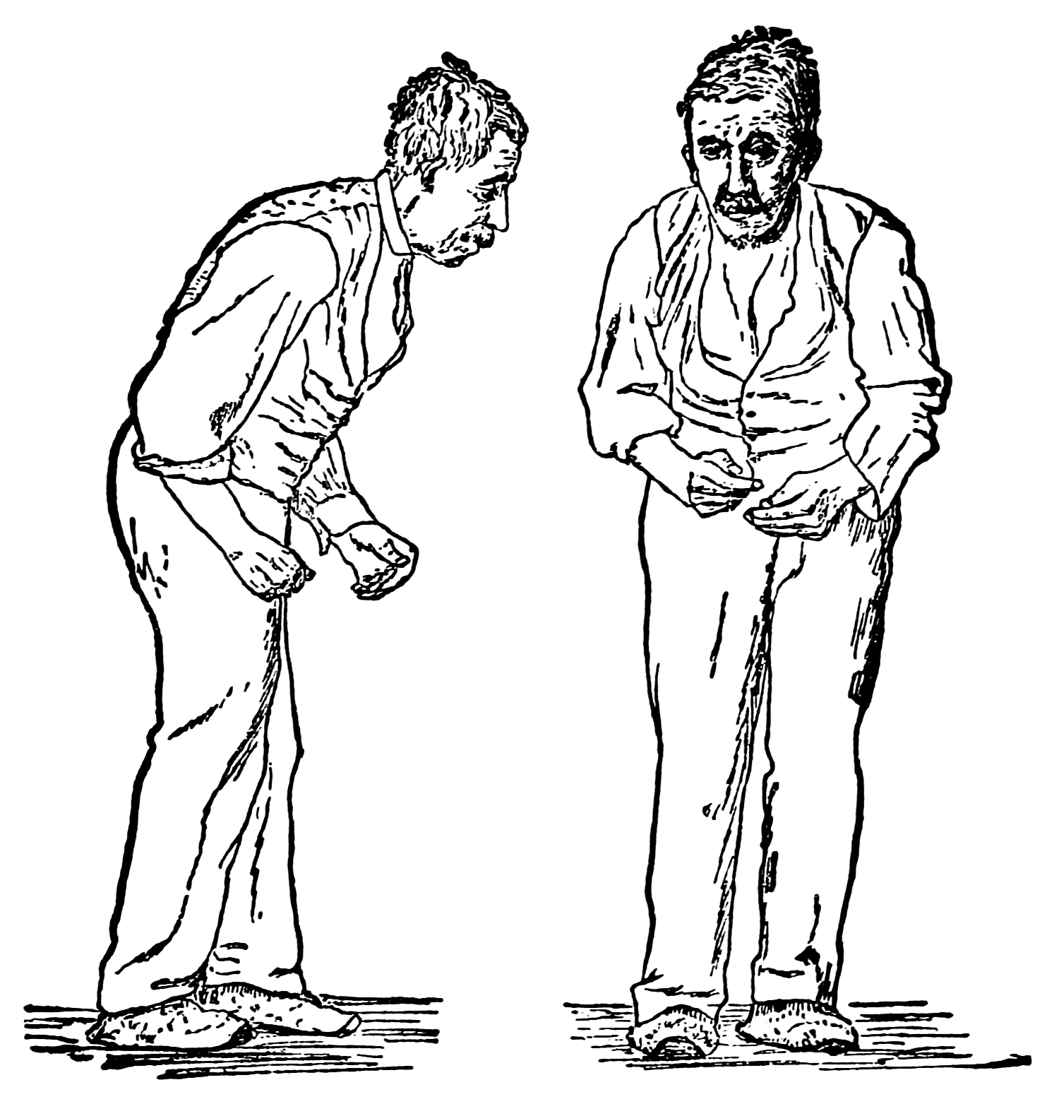 Illustration of man with stooped posture, shown from front and profile views