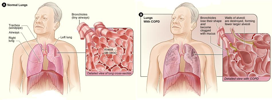 Illustrations comparing normal lungs with C O P D lungs.