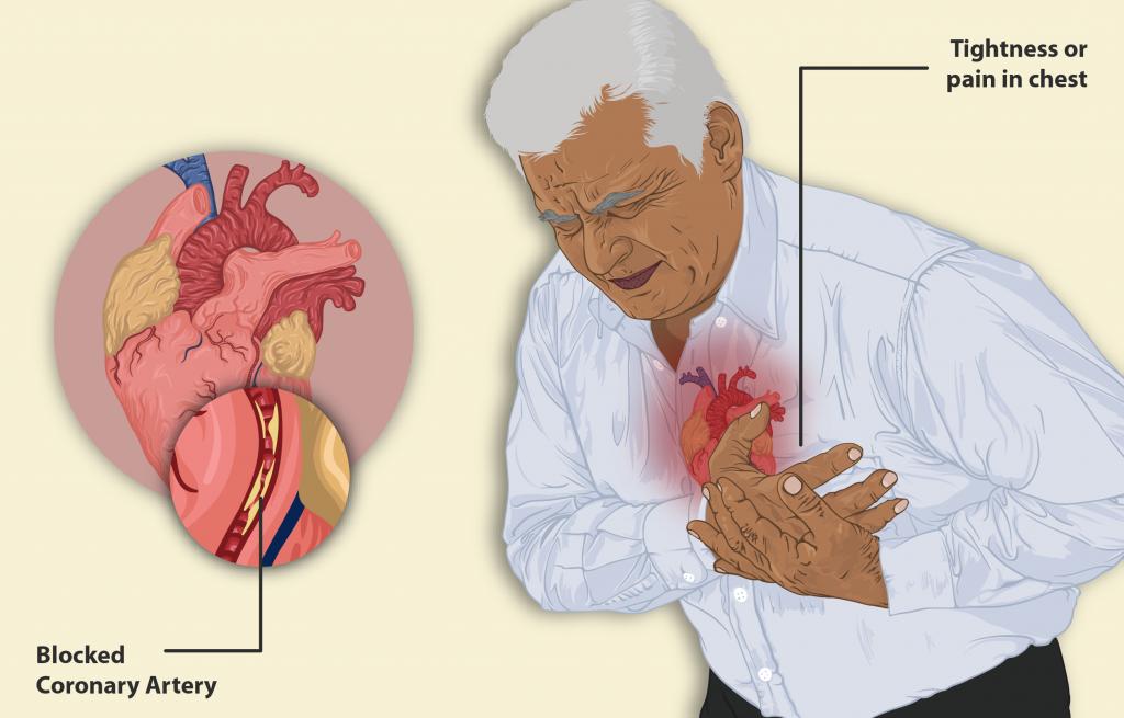 illustration of Man having a heart attack