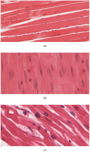 Micrographs of three types of muscles