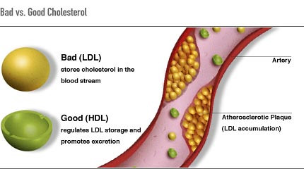 Illustration, with labels, showing bad versus good cholesterol