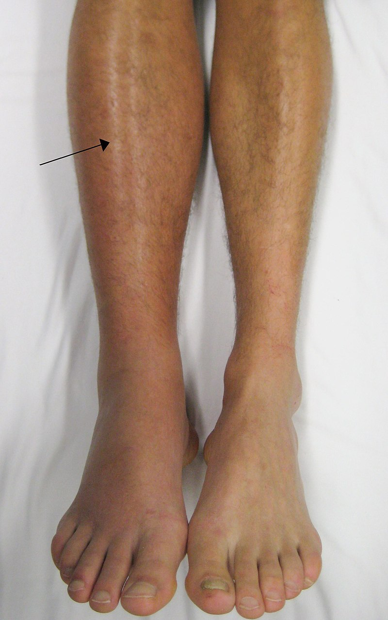 Photo showing signs of DVT on the right leg