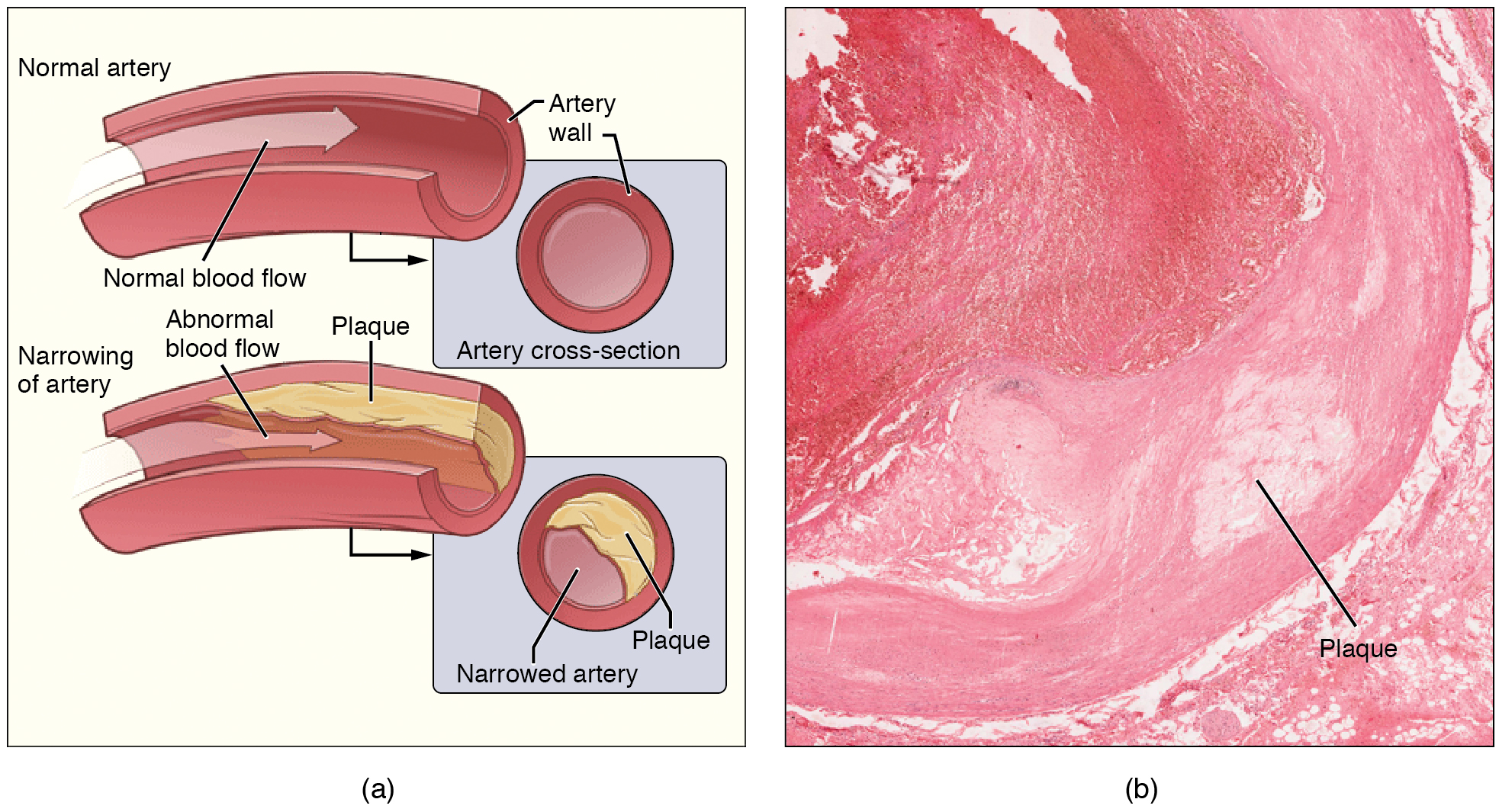 Illustration and micrograph, showing atherosclerosis