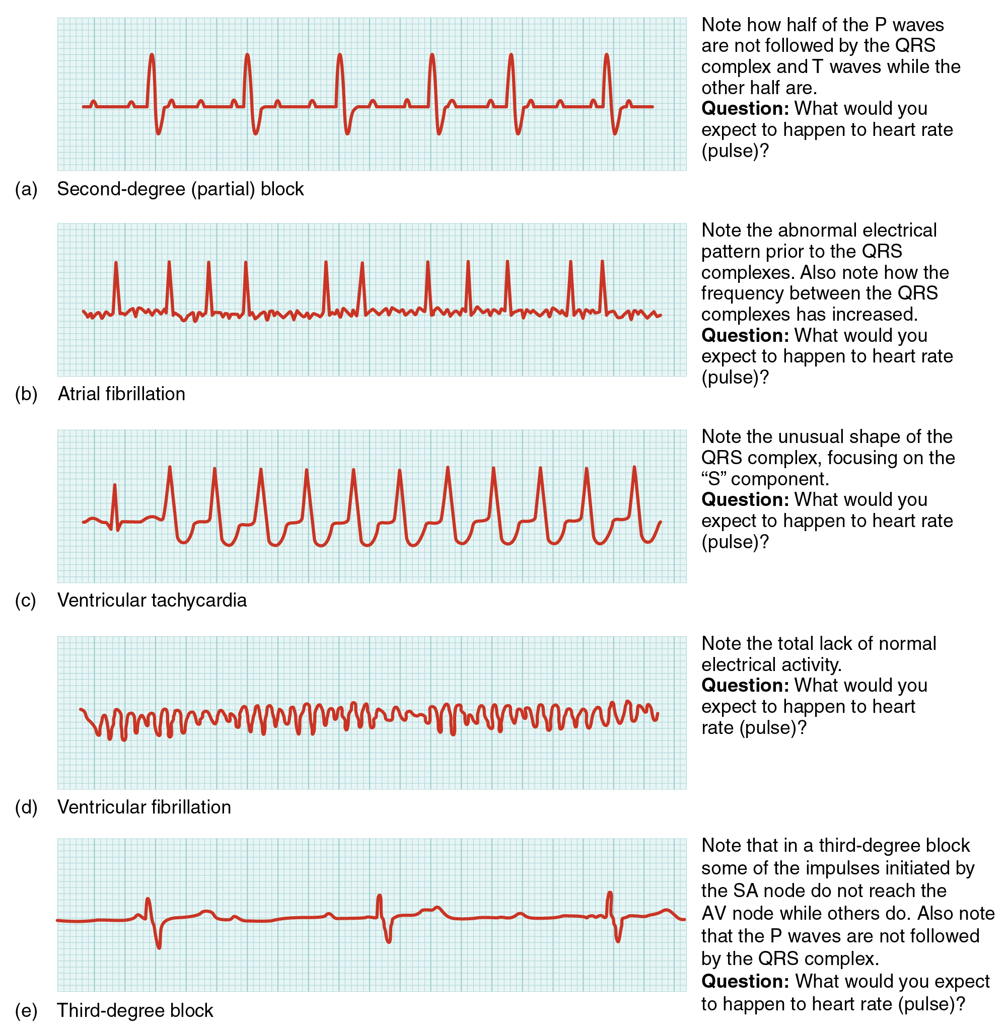 Illustrations showing comparisons of common ECG abnormalities