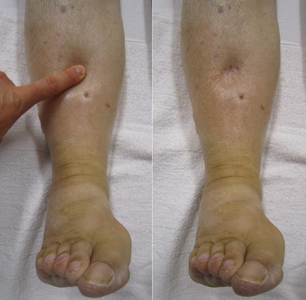 Photo showing a finger pressing into a patient's leg to assess for edema